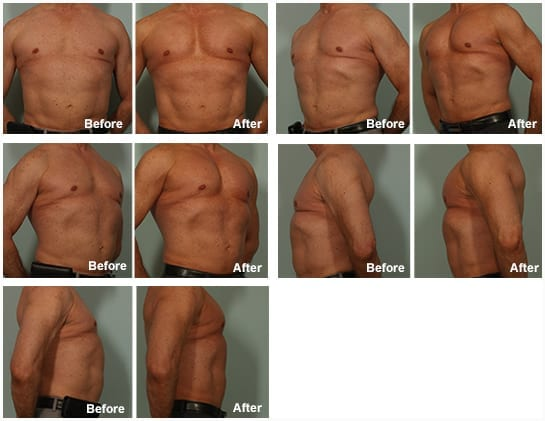 Breast Implants Under The Muscle Recovery